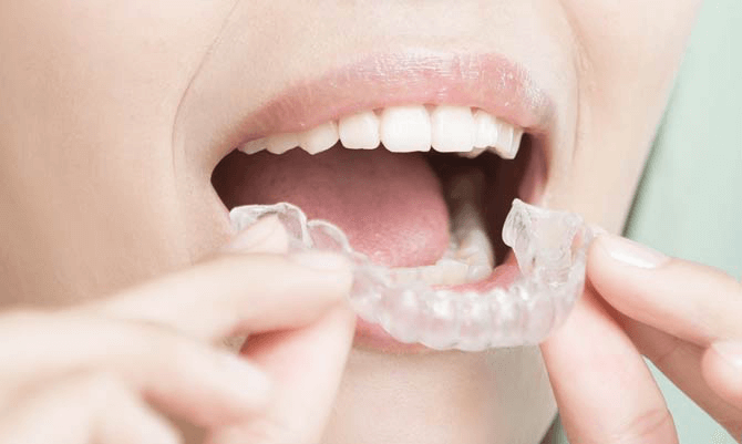 Tandblekning hemma